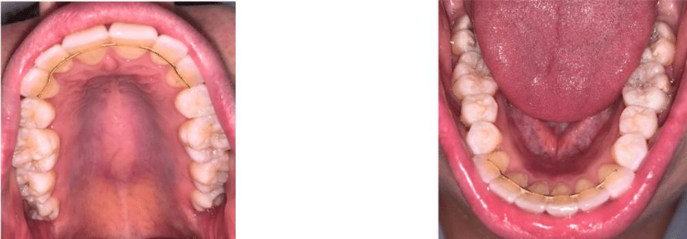 Photo of an intraoral orthodontic selfie