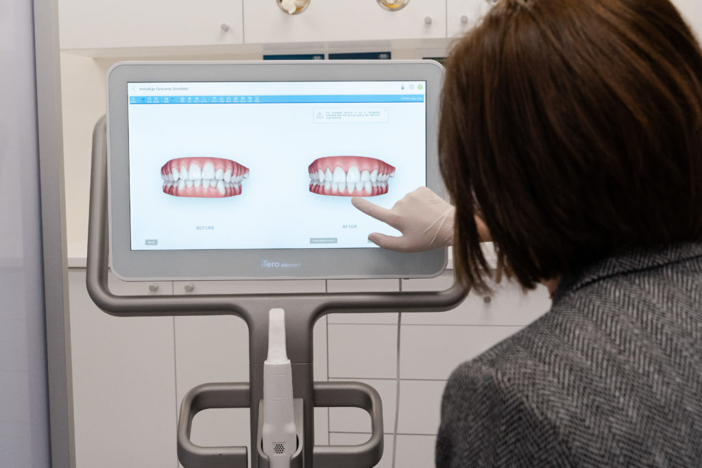 orthodontic scan with the iTero scanner