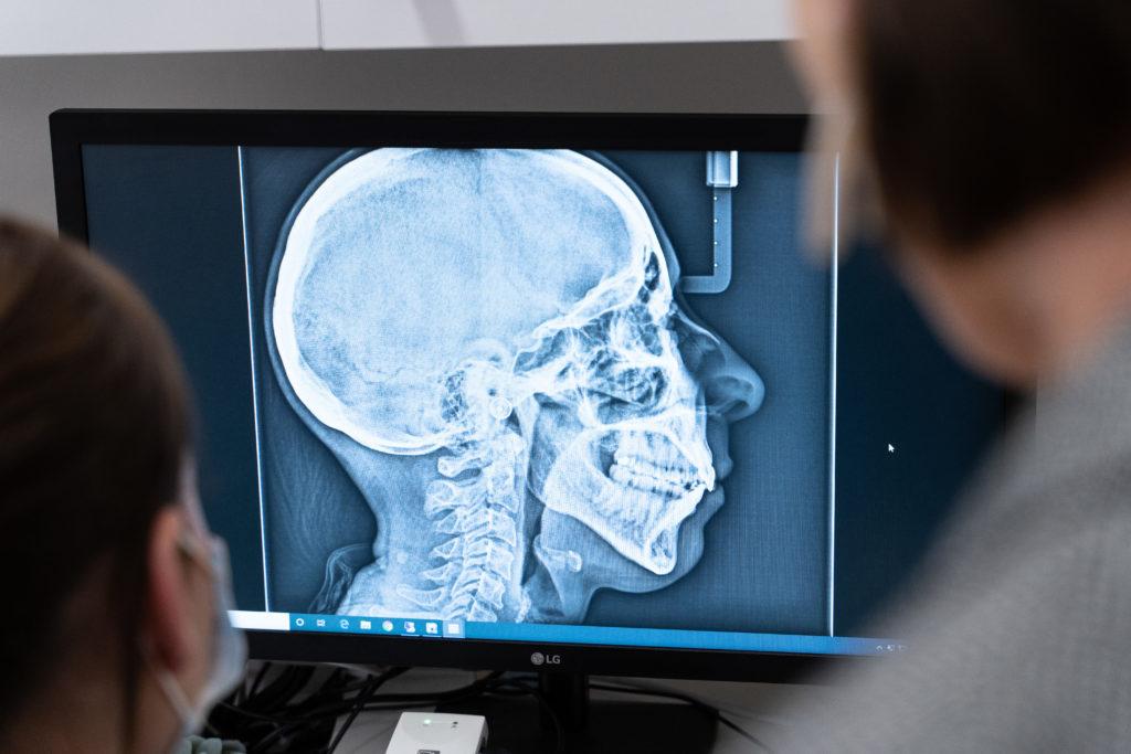 Orthodontic x-ray