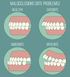 Malocclusion and why orthodontics is more than just aesthetics