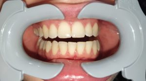 Good photo taken in dental monitoring
