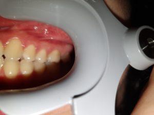 Photo taken too close in dental monitoring