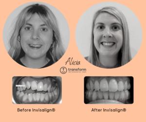 TOC transformed Alicia's smile using Invisalign