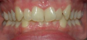 Katrina's teeth before Invisalign treatment