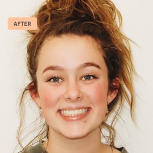 Grace's braces transformation